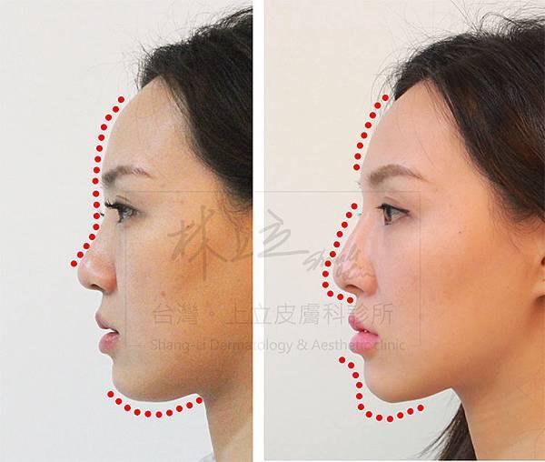 額頭凹陷老化皺紋細紋抬頭紋洢蓮絲肉毒桿菌755蜂巢皮秒雷射3
