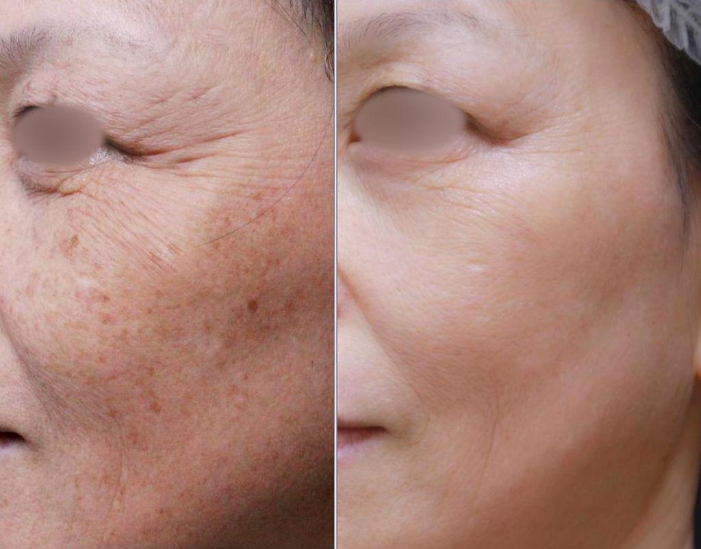 額頭凹陷老化皺紋細紋抬頭紋洢蓮絲肉毒桿菌755蜂巢皮秒雷射6