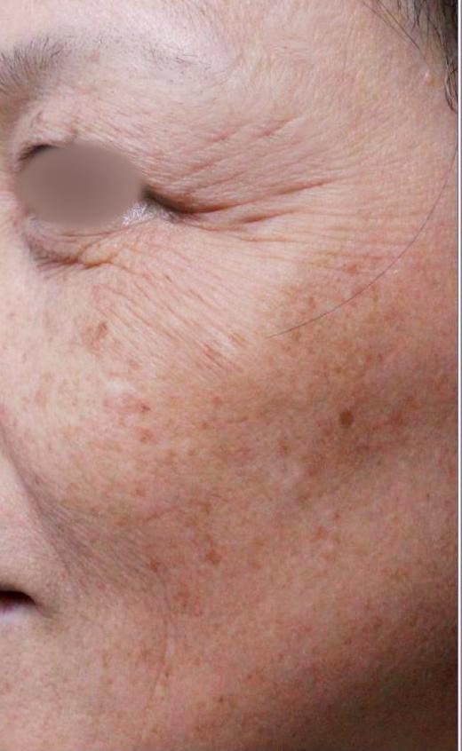 額頭凹陷老化皺紋細紋抬頭紋洢蓮絲肉毒桿菌755蜂巢皮秒雷射7