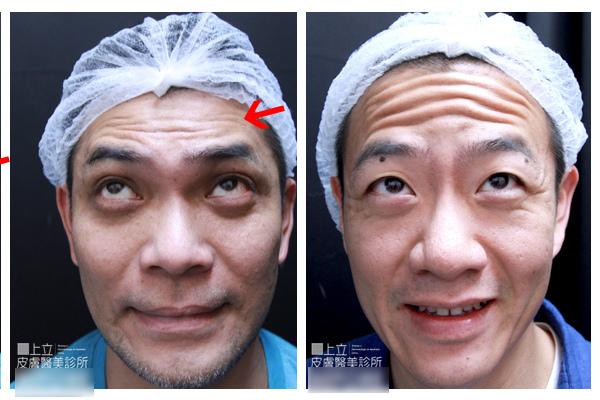 額頭凹陷老化皺紋細紋抬頭紋洢蓮絲肉毒桿菌755蜂巢皮秒雷射8