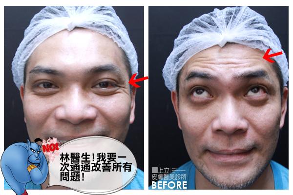 額頭凹陷老化皺紋細紋抬頭紋洢蓮絲肉毒桿菌755蜂巢皮秒雷射10