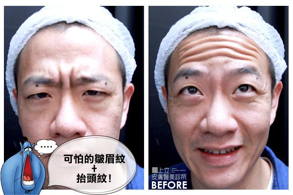 額頭凹陷老化皺紋細紋抬頭紋洢蓮絲肉毒桿菌755蜂巢皮秒雷射9