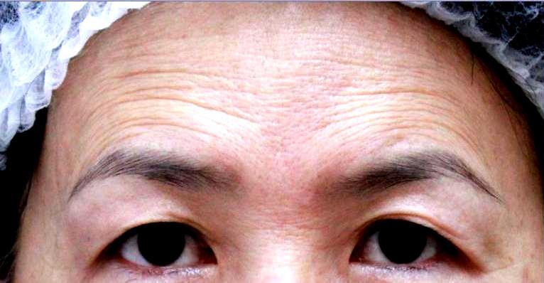 額頭凹陷老化皺紋細紋抬頭紋洢蓮絲肉毒桿菌755蜂巢皮秒雷射11