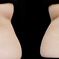 MICOOL-S冷凍溶脂效果冷凍溶脂價錢冷凍減脂心得冷凍溶脂推薦冷凍溶脂ptt冷凍溶脂原理冷凍溶脂術後瘦肚子的方法快速瘦肚子運動瘦肚子按摩快速瘦小腹運動瘦肚子飲食瘦肚子11.png