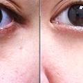 眼下細紋眼周皺紋下垂老化抗老膠原蛋白Ellanse洢蓮絲聚己內酯依戀詩易麗適少女針液態拉皮上立提二代童顏針舒顏萃sculptra3D聚左旋乳酸塑然雅12.png