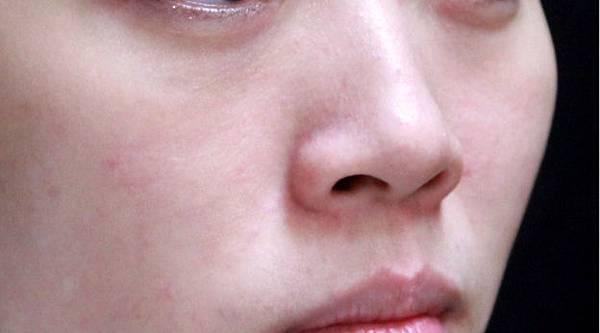液態拉皮蘋果肌液態拉皮上立提聚己內酯洢蓮絲少女針3D聚左旋乳酸Sculptra童顏針晶亮瓷微晶瓷蘋果肌明顯蘋果肌下垂蘋果肌顴骨蘋果肌法令紋02.jpg