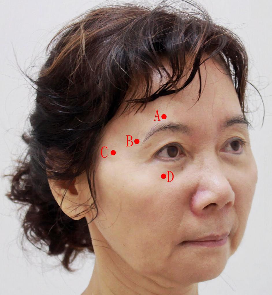 舒顏萃sculptra3D聚左旋乳酸塑然雅童顏針淚溝液態拉皮作用舒顏萃價格費用9.png