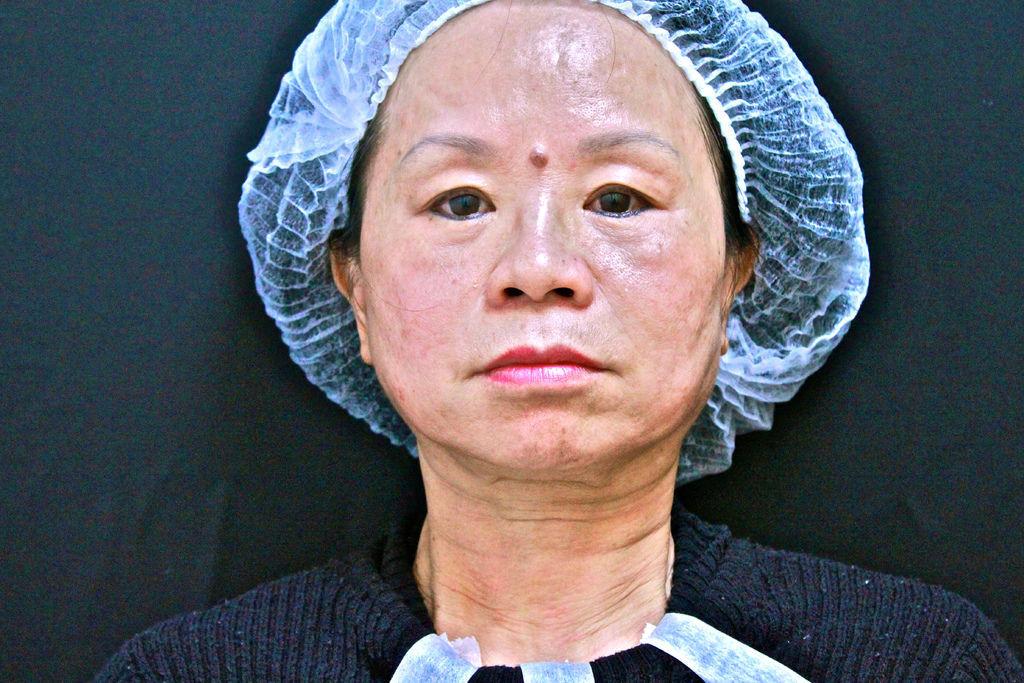 抗老拉提全臉回春抗老保養年輕肌膚洢蓮絲ellanse聚己內酯3D聚左旋乳酸舒顏萃童顏針液態拉皮上立提ShangLift林上立上立皮膚科診所10.jpg