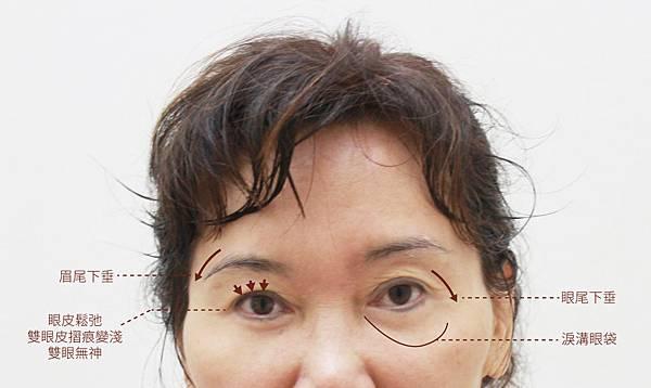 洢蓮絲ellanse聚己內酯PCL依戀詩易麗適少女針奇蹟針液態拉皮上立提林上立醫師眉尾下垂眉毛下垂眉毛拉提眼尾下垂眼尾下垂改善2.jpg