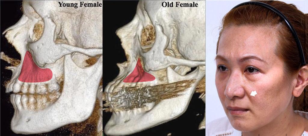液態拉皮上立提二代童顏針膠原蛋白增生洢蓮絲費用價格術後保養1CC二代童顏針3D聚左旋乳酸手術拉皮3.jpg