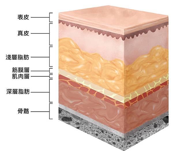 液態拉皮上立提二代童顏針膠原蛋白增生洢蓮絲費用價格術後保養1CC二代童顏針3D聚左旋乳酸手術拉皮7.jpg
