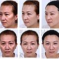 液態拉皮上立提二代童顏針膠原蛋白增生洢蓮絲費用價格術後保養1CC二代童顏針3D聚左旋乳酸手術拉皮6.png