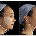 埋線拉皮費用臉部埋線價格效果埋線拉提副作用埋線拉提推薦臉部價格4D埋線拉皮埋線拉皮推薦埋線林上立醫師推薦醫師液態拉皮上立提立提線少女線立提少女線11.jpg