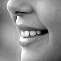 洢蓮絲ellanse聚己內酯PCL依戀詩易麗適少女針奇蹟針液態拉皮上立提二代童顏針膠原蛋白增生推薦醫師液態拉皮二代童顏針台北推薦診所上立皮膚科林上立醫師 (2).jpg