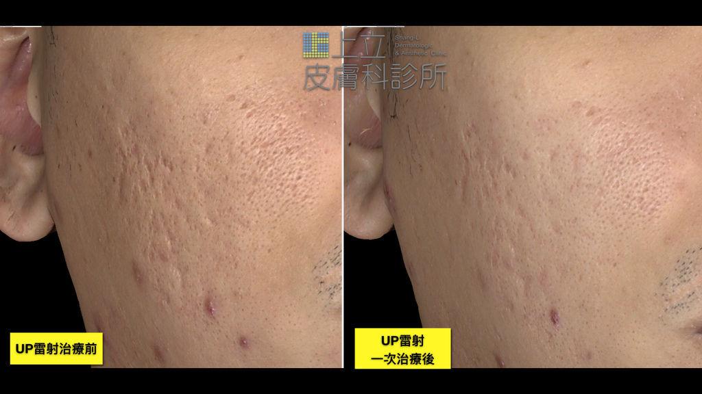 UP雷射一次治療痘疤效果 上立皮膚科診所 UltraPulse UP雷射 林上立醫師 (2).TIF