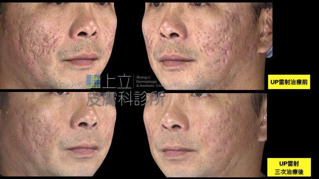 UP雷射三次次治療痘疤效果 上立皮膚科診所 UltraPulse UP雷射 林上立醫師.TIF