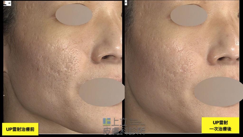 UP雷射一次治療痘疤效果 上立皮膚科診所 UltraPulse UP雷射 林上立醫師.TIF