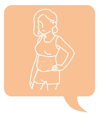 SculpSure體雕減肥減肥藥不好絲酷秀術後修復價格恢復期雷射體雕二極體冷凍溶脂減肥日記費用減肥食譜術後雷射溶脂局部平坦小腹塑身曲線雕塑林上立上立皮膚科診所05.png