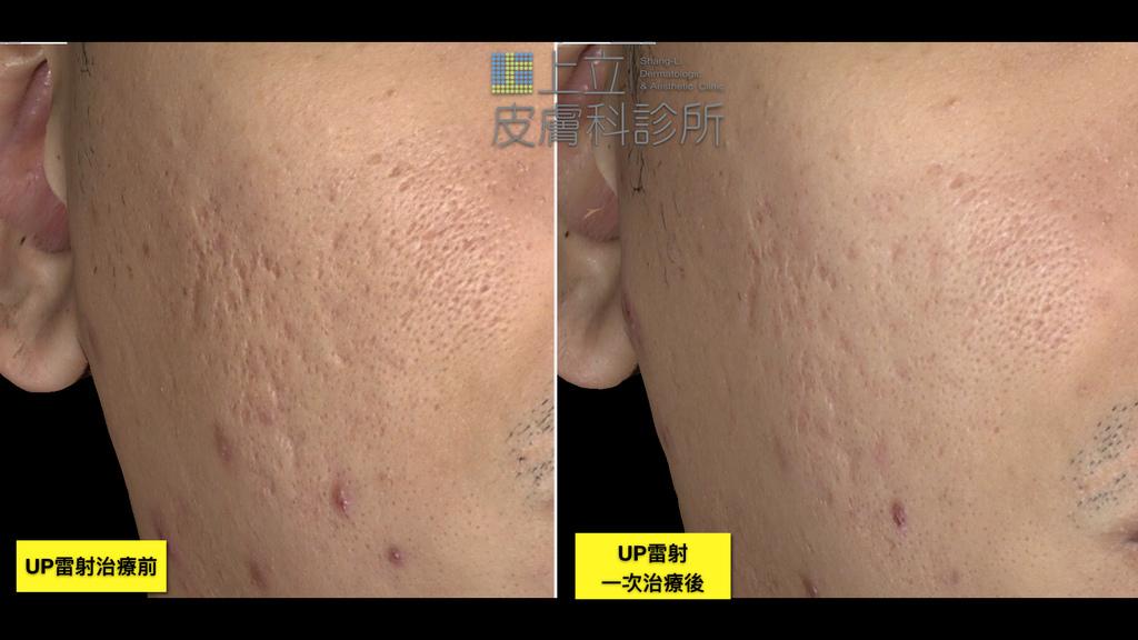 Up雷射ultrapulse汽化雷射雷射效果痘疤凹疤up雷射永和皮膚科林上立醫師上立皮膚科6.jpg