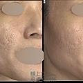 Up雷射ultrapulse汽化雷射雷射效果痘疤凹疤up雷射永和皮膚科林上立醫師上立皮膚科7.jpg