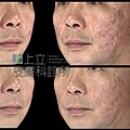 Up雷射ultrapulse汽化雷射雷射效果痘疤凹疤up雷射永和皮膚科林上立醫師上立皮膚科8.jpg
