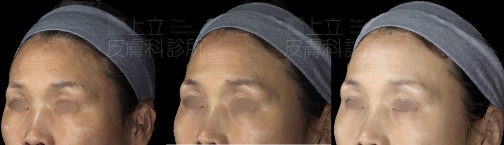 PicoSure755皮秒雷射蜂巢式雀斑曬斑除斑痘疤台北皮秒雷射推薦醫師皮膚科醫師痘疤凹疤飛梭雷射皮秒雷射價格副作用除斑凹洞淨膚雷射防曬推薦防曬乳曬黑紫外線(4).jpg