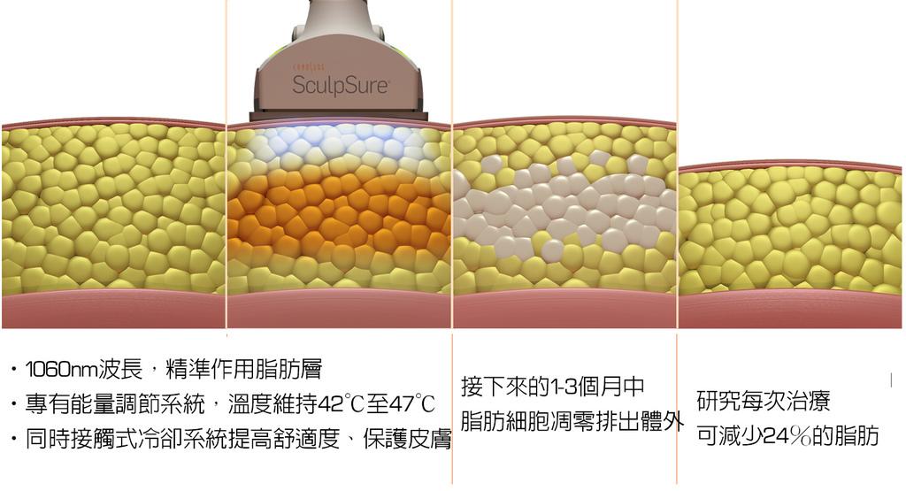 SculpSure體雕減肥絲酷秀術後修復價格恢復期雷射體雕二極體冷凍溶脂林上立上立皮膚科診所 (2).jpg