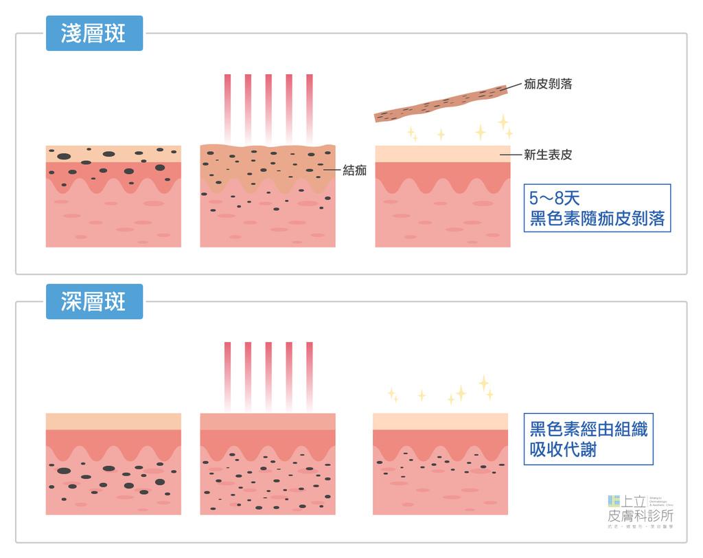 PicoSure755蜂巢皮秒雷射進行雷射除斑-依照斑點深度不一定會結痂-跟深淺層斑黑色素在皮膚的深度和代謝有關