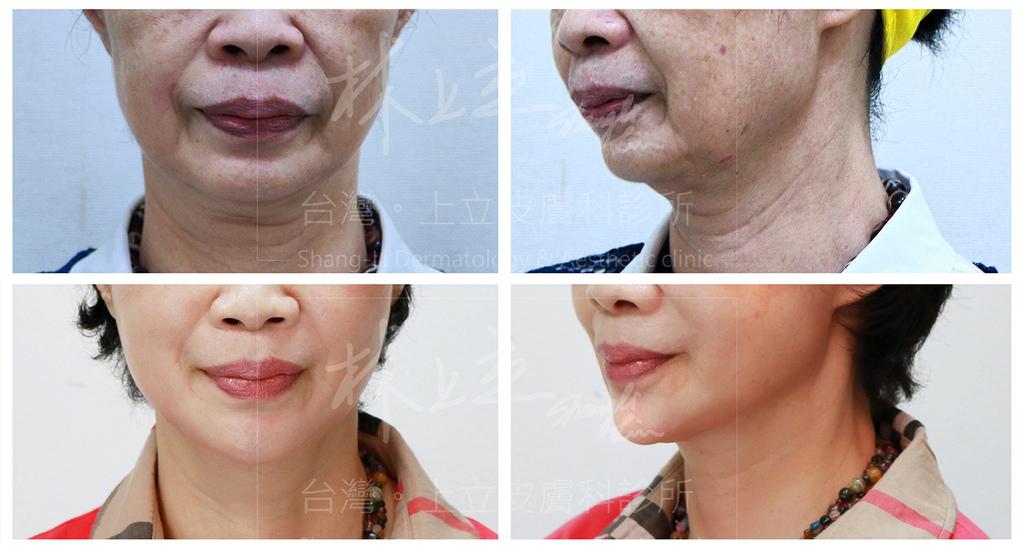 01-Double-chin-doctor-ShangLi-dermatologic-aesthetic-clinic (4).jpg