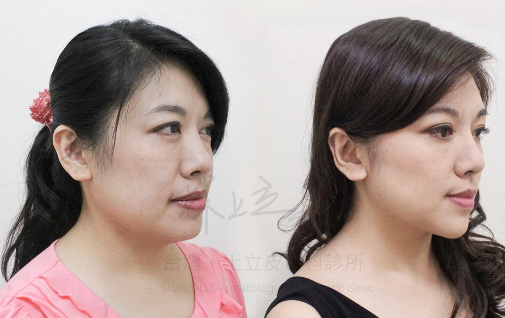 01-Double-chin-doctor-ShangLi-dermatologic-aesthetic-clinic (3).jpg