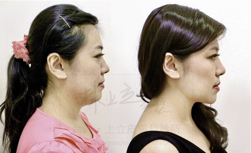 01-Double-chin-doctor-ShangLi-dermatologic-aesthetic-clinic (2).jpg