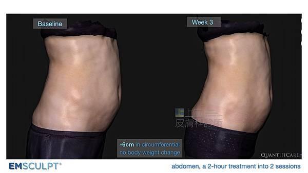 02-BA-fat-emsculpt-before-after-lslskin99-clinic.jpg