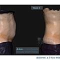04-BA-fat-emsculpt-before-after-lslskin99-clinic.jpg.jpg