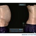 03-BA-fat-emsculpt-before-after-lslskin99-clinic.jpg.png