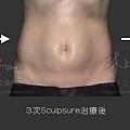 08-Case-Fatty-Subtraction.jpg
