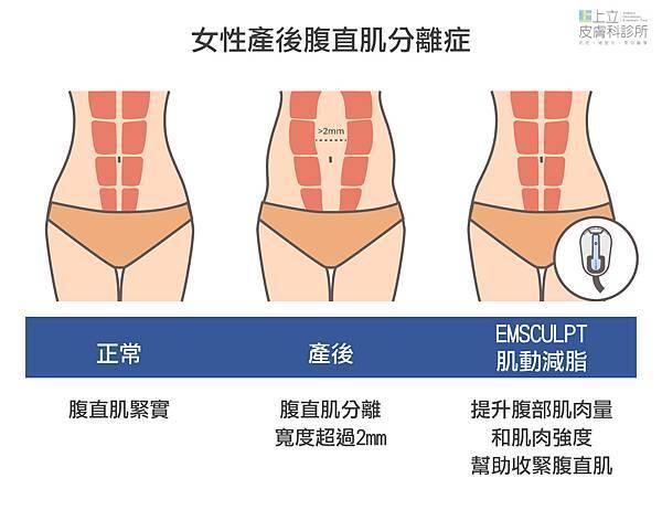 03-Muscles-Abs-Skin.jpg
