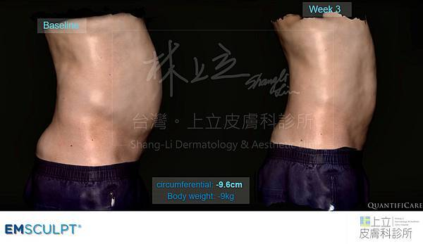 06-Case-Fatty-Reduction.jpg