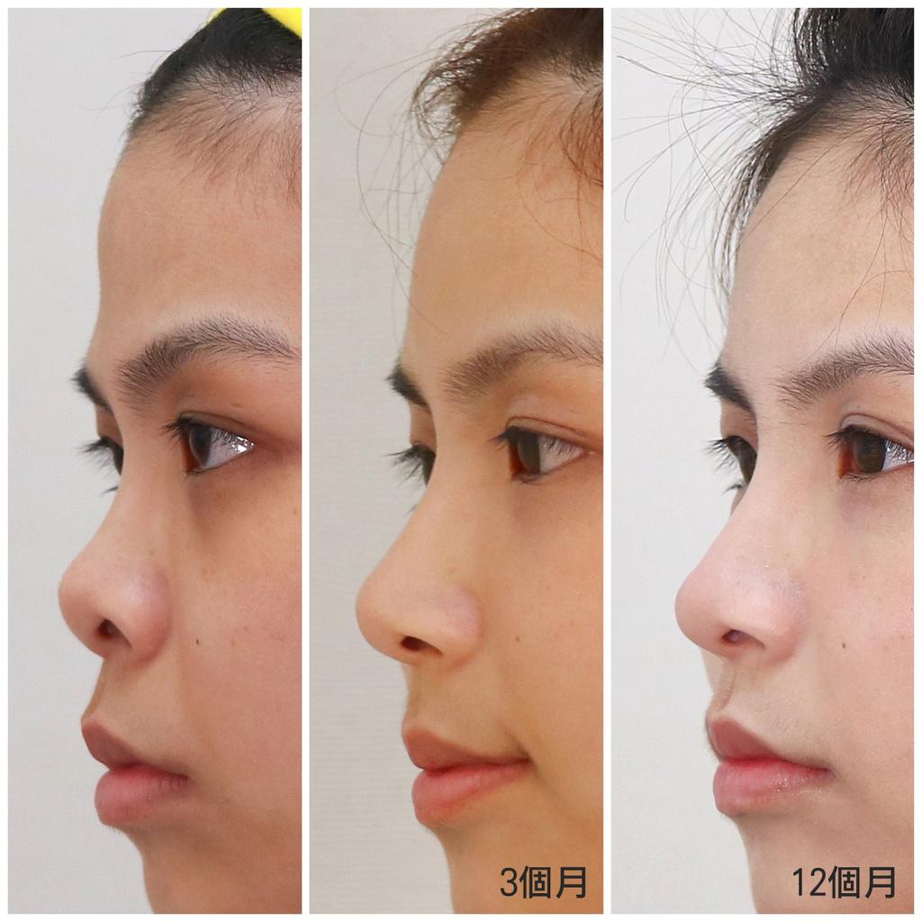 03-Girl-profile-nose-chin-change.jpg