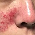 02-Skin-Wound.jpg