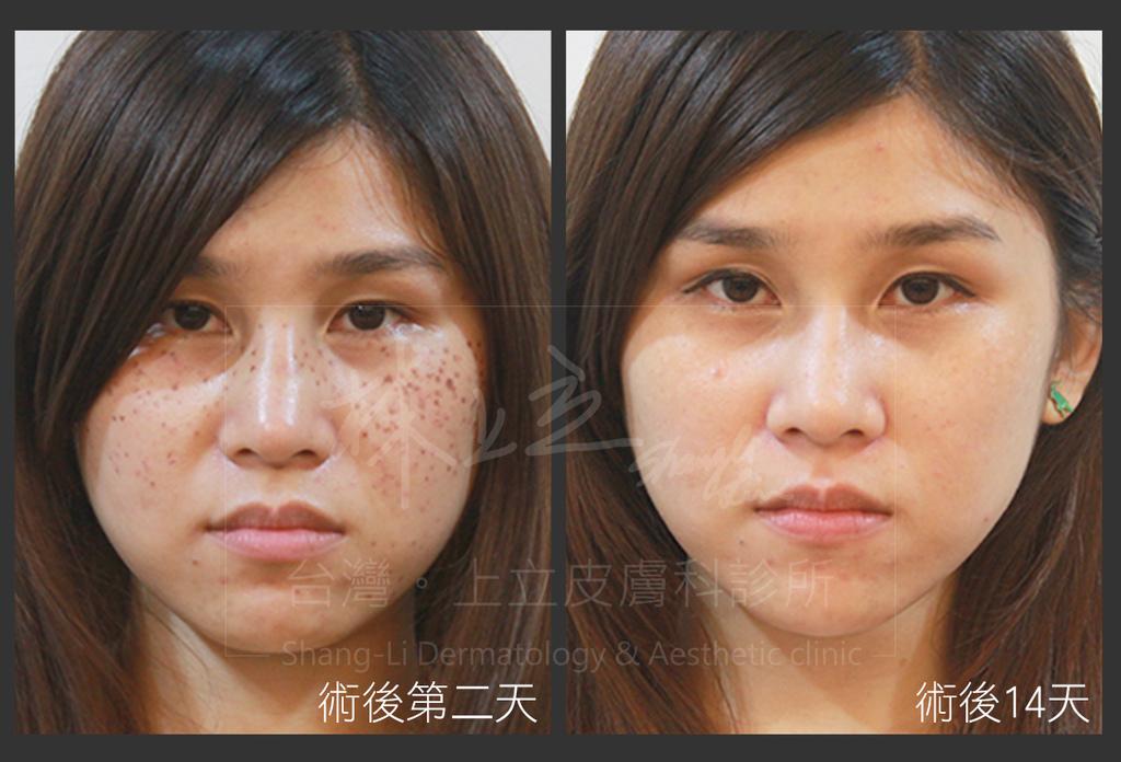 台北上立皮膚科院長林上立醫師利用蜂巢皮秒雷射治療雀斑的案例照,雷射術後只有輕微泛紅,恢復期短、術後保養容易。