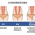12-Postpartum-Rectus Abdominis Separation-Muscle.jpg