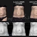 13-Body Sculpture-Comparison.jpg