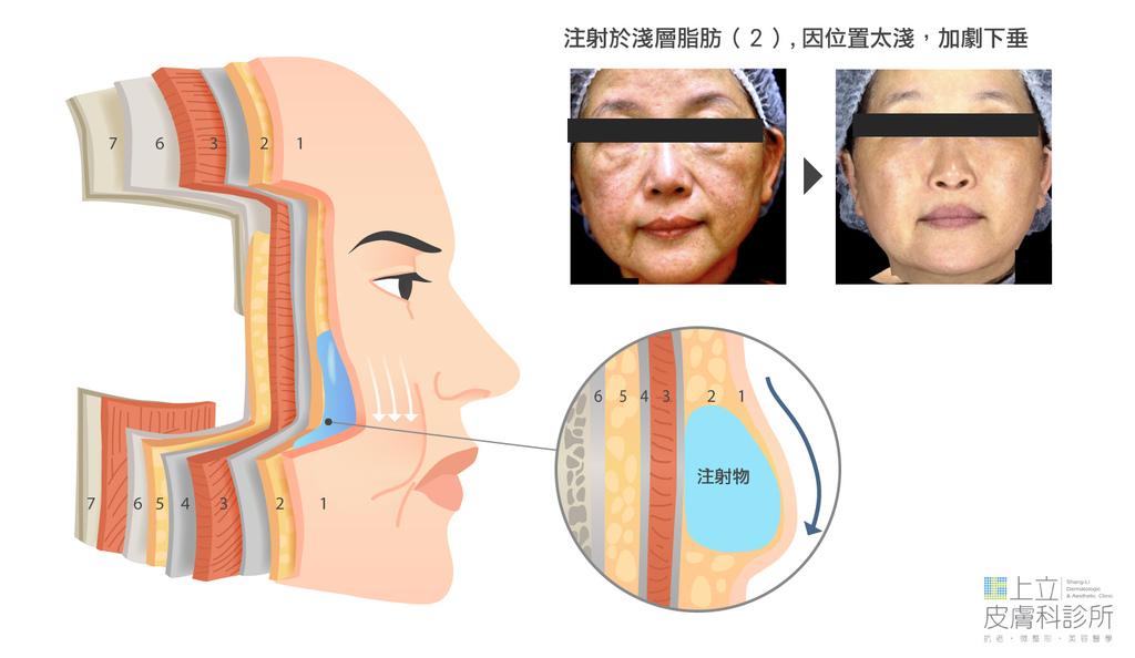 洢蓮絲注射的層次錯誤,造成臉部下垂更嚴重.jpg