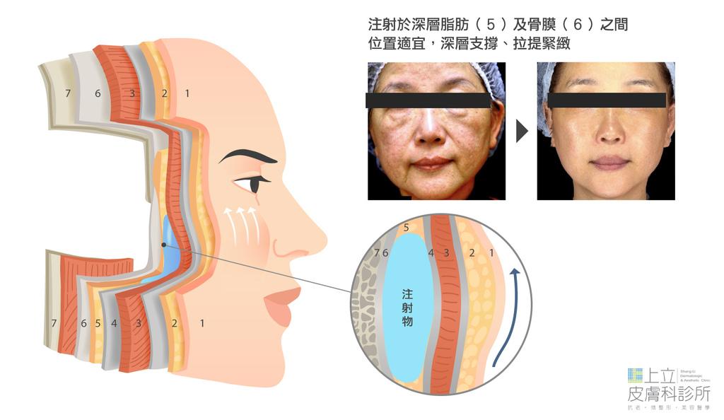洢蓮絲注射在正確的層次,臉部輪廓明顯收緊、拉提.jpg