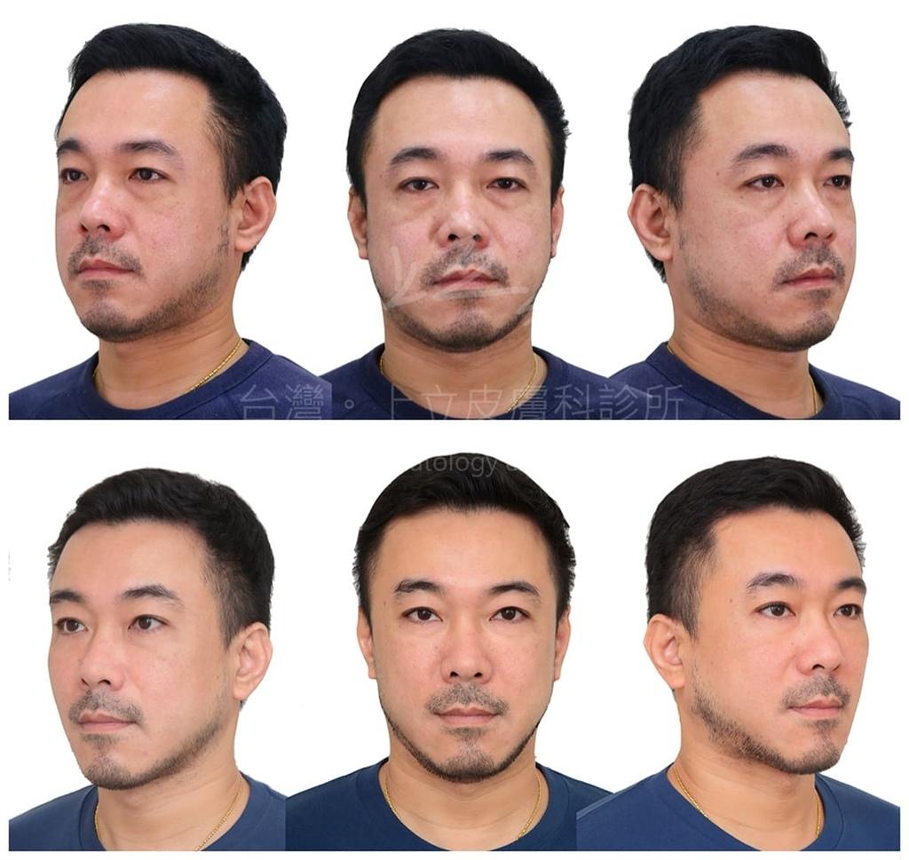 男性利用洢蓮絲治療淚溝、並進行全臉拉提.jpg