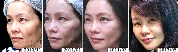 collagen-how-much-hyaluronic-acid-doctor-prove-it-to-you