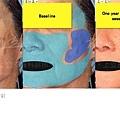 上立201012雷射去除痘疤 (2).jpg