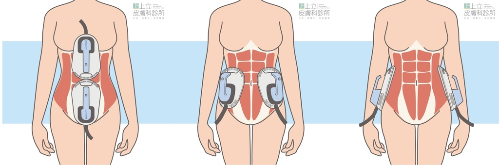EMSCULPT肌動減脂肌動翹臀林上立增肌減脂推薦上立皮膚科診所