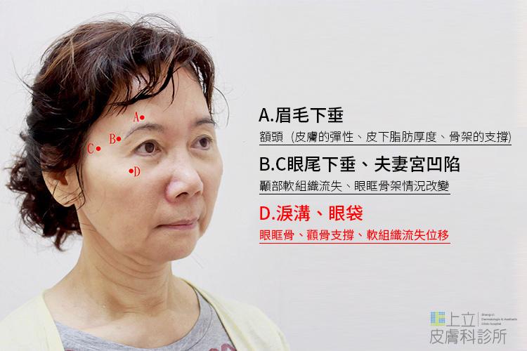 上臉骨架流失,會造成眼袋、淚溝、夫妻宮凹陷、眼尾和眉尾下垂