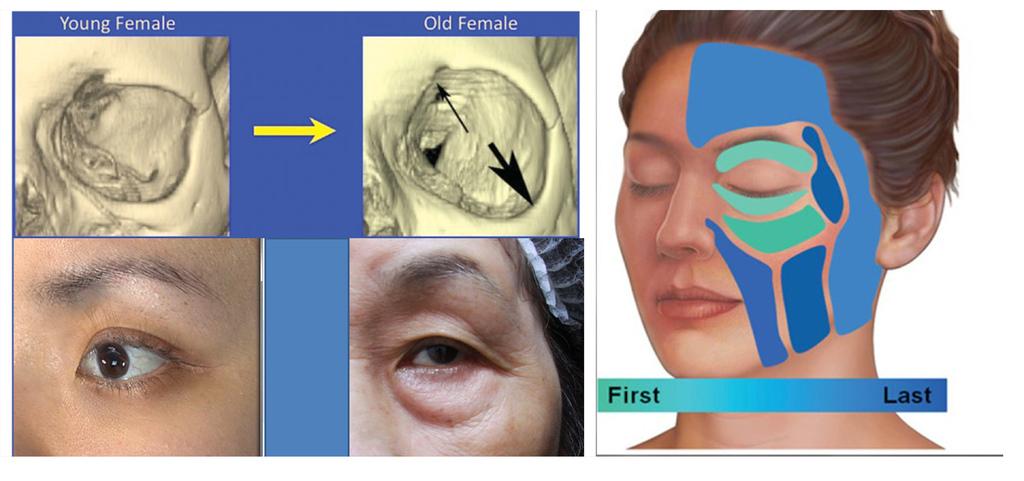 年輕和老化眼周骨架的流失狀況
